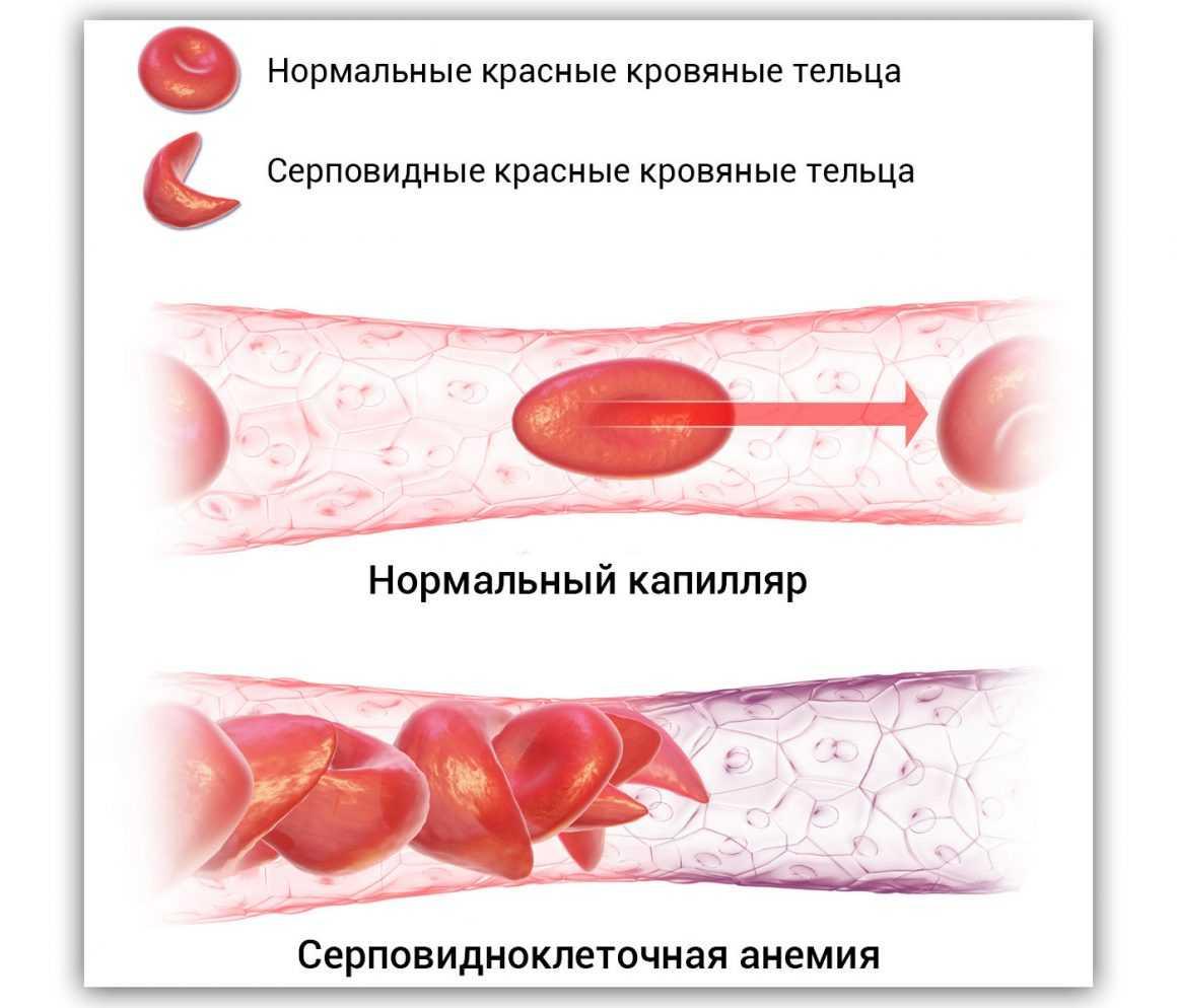 Серповидноклеточная анемия как орфанное забоелвание