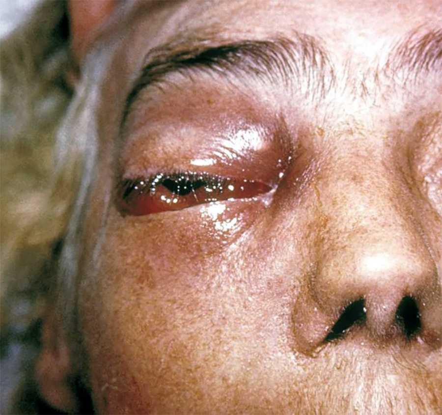Зигомикоз: орфанное заболевание