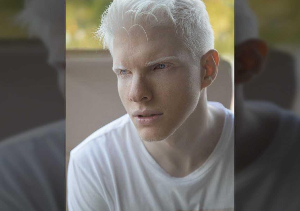 Альбинос с голубыми глазами